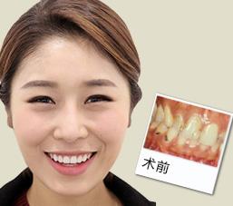 牙外伤修复